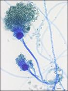 Aspergillus, a common fungus that rarely causes problems but can affect immuno-compromised people
